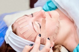 Use of Kinesiology Taping in Dentistry