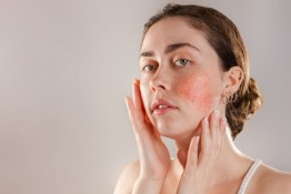All You Need to Know About Rosacea
