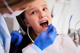 Don't Want Wired Braces This School Year? Check Out the Clearer Option