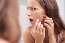 Best Facial Treatments in Dubai for Acne | ZO Skin Clinic