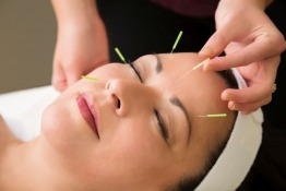Fertility in Dubai: How Acupuncture Can Help Aid Infertility Part 2