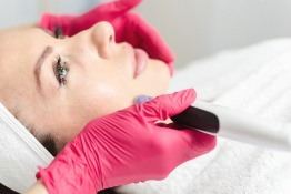 A guide to microneedling in Dubai