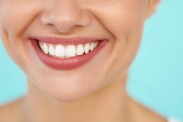 5 Good Reasons to Whiten Your Teeth For Christmas