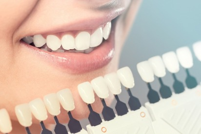 Review: Whiter Teeth in One Sitting