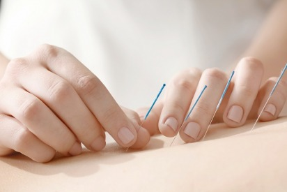 The Koster Clinic Welcomes Acupuncture Specialist Martine Nates