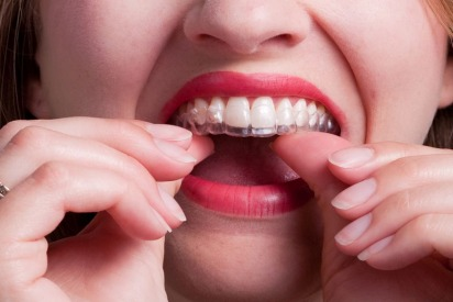 Get a Gorgeous Smile Today with Clear Aligners