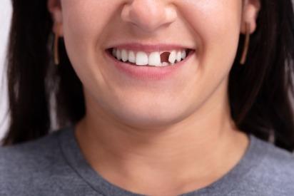 Dentist in Dubai | Drs. Nicolas & Asp Center