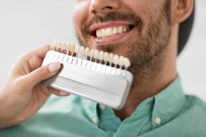 Dental Veneers in Dubai | Drs. Nicolas & Asp