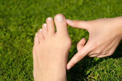 Treatment of Bunions | Mediclinic Abu Dhabi