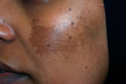 What Is Melasma (Chloasma or Mask of Pregnancy)?