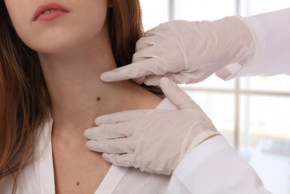 Mole Removal in Dubai: When Should You See a Dermatologist?