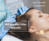 Best hair fillers in Dubai