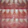Gum Depigmentation in Dubai   ConfiDent Dubai Palm