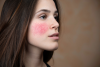 Rosacea in Dubai: How to Identify and Treat It According to Experts